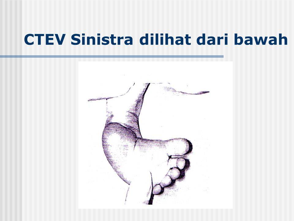 CTEV Sinistra dilihat dari bawah