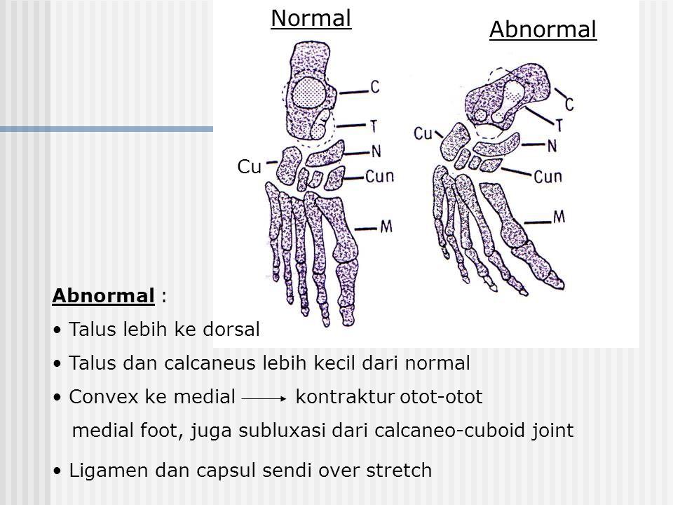 Cu Normal Abnormal Abnormal : Talus lebih ke dorsal Talus dan calcaneus lebih kecil dari normal Convex ke medial kontraktur otot-otot medial foot, juga subluxasi dari calcaneo-cuboid joint Ligamen dan capsul sendi over stretch