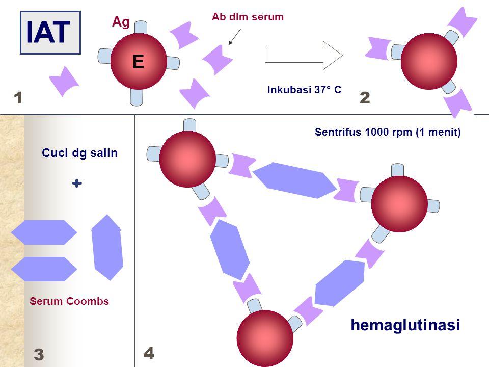 E Serum Coombs IAT Ab dlm serum Inkubasi 37° C Cuci dg salin + Sentrifus 1000 rpm (1 menit) hemaglutinasi Ag E 12 3 4