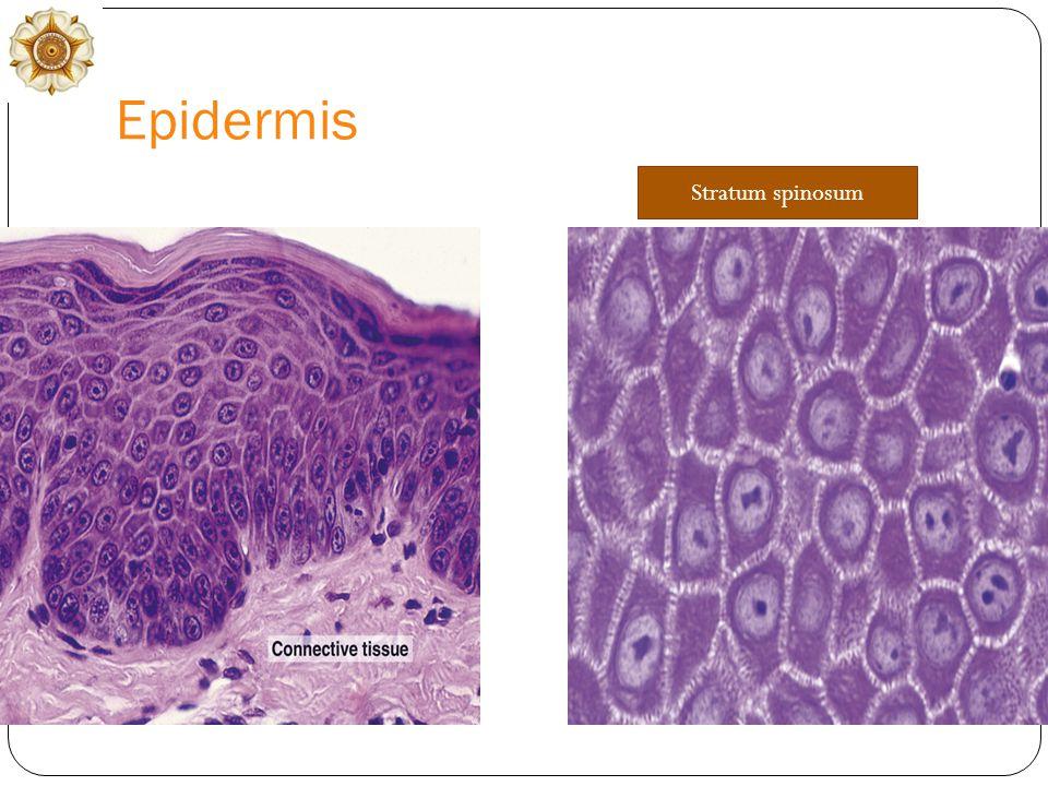 Epidermis Stratum spinosum