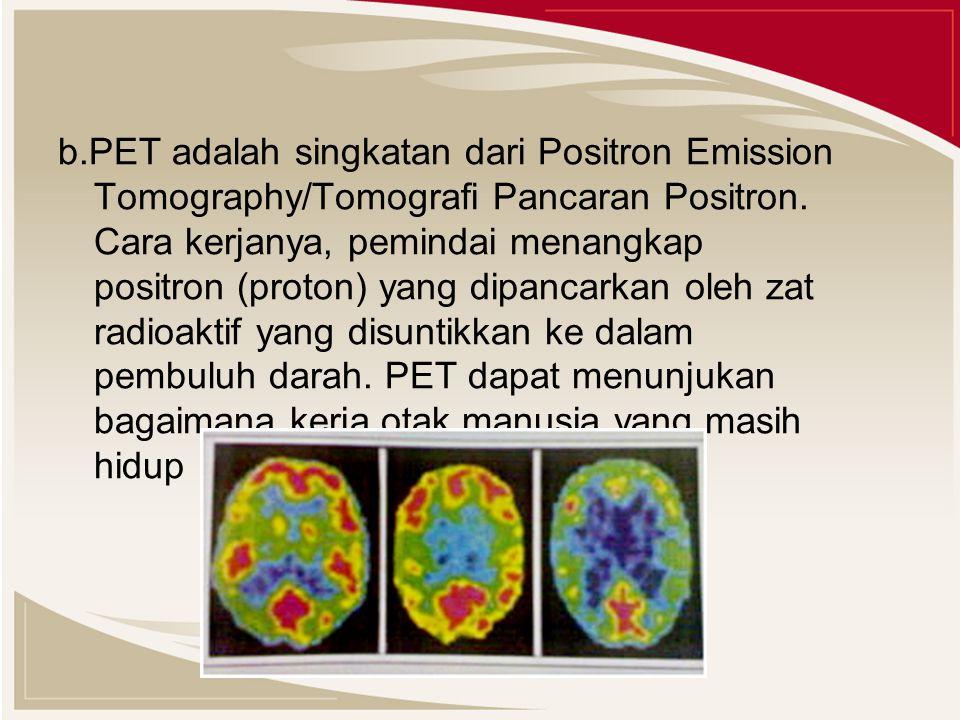 b.PET adalah singkatan dari Positron Emission Tomography/Tomografi Pancaran Positron. Cara kerjanya, pemindai menangkap positron (proton) yang dipanca