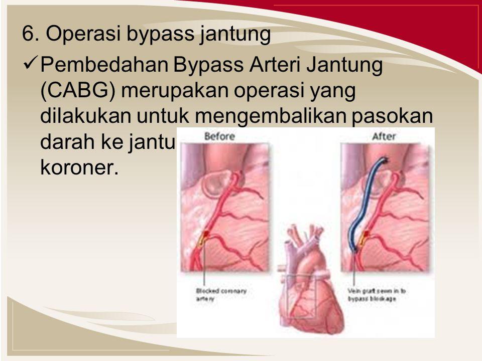6. Operasi bypass jantung Pembedahan Bypass Arteri Jantung (CABG) merupakan operasi yang dilakukan untuk mengembalikan pasokan darah ke jantung pada p