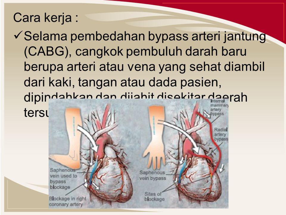 Cara kerja : Selama pembedahan bypass arteri jantung (CABG), cangkok pembuluh darah baru berupa arteri atau vena yang sehat diambil dari kaki, tangan