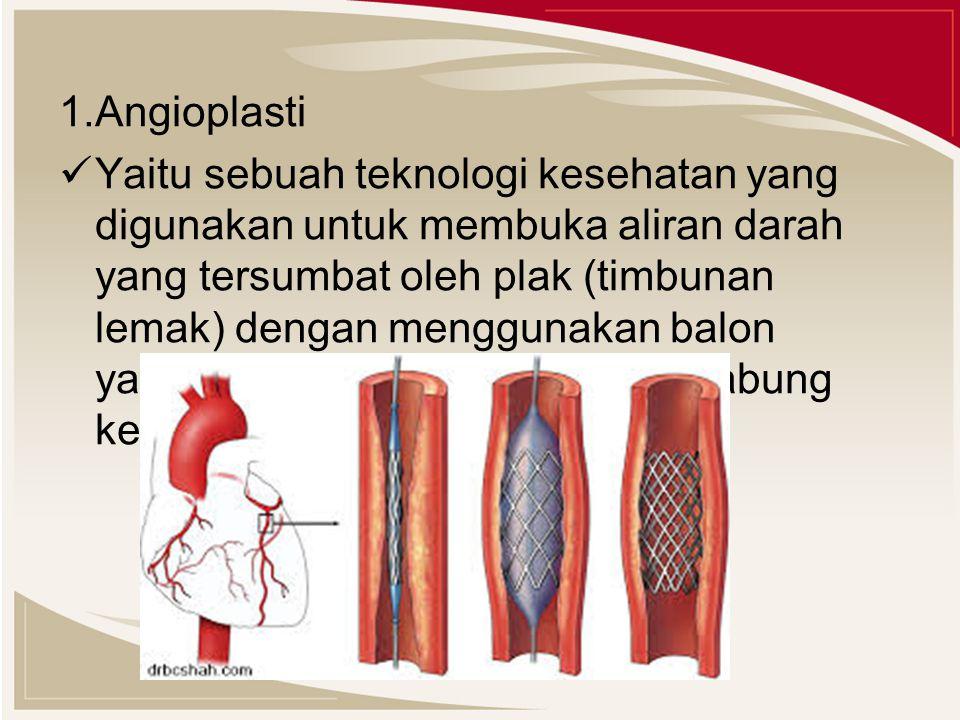 1.Angioplasti Yaitu sebuah teknologi kesehatan yang digunakan untuk membuka aliran darah yang tersumbat oleh plak (timbunan lemak) dengan menggunakan