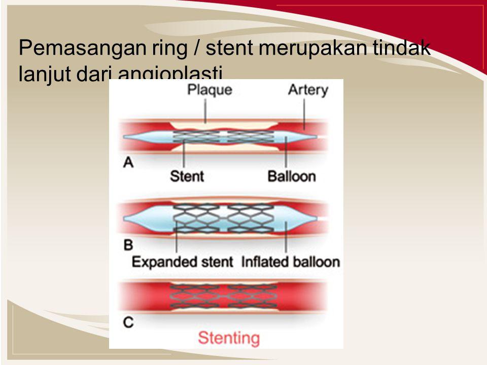 Pemasangan ring / stent merupakan tindak lanjut dari angioplasti.