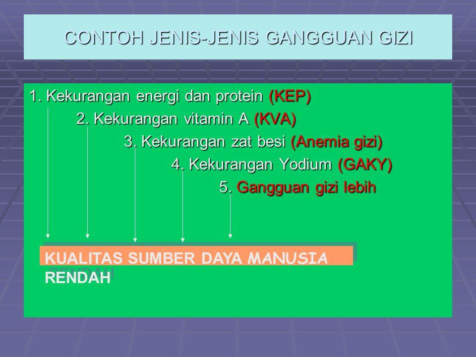 CONTOH JENIS-JENIS GANGGUAN GIZI 1. Kekurangan energi dan protein (KEP) 2. Kekurangan vitamin A (KVA) 3. Kekurangan zat besi (Anemia gizi) 4. Kekurang