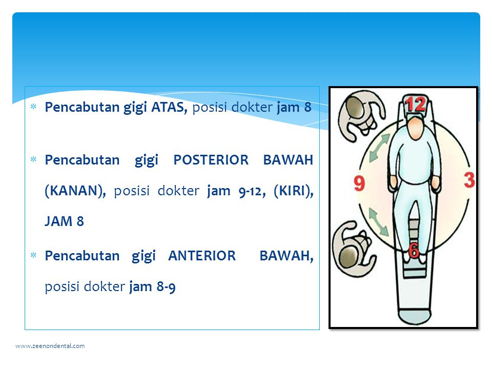  Pencabutan gigi ATAS, posisi dokter jam 8  Pencabutan gigi POSTERIOR BAWAH (KANAN), posisi dokter jam 9-12, (KIRI), JAM 8  Pencabutan gigi ANTERIO