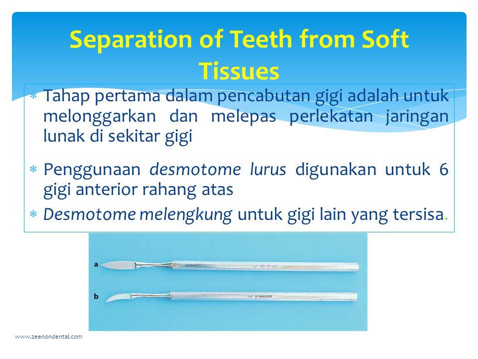  Tahap pertama dalam pencabutan gigi adalah untuk melonggarkan dan melepas perlekatan jaringan lunak di sekitar gigi  Penggunaan desmotome lurus digunakan untuk 6 gigi anterior rahang atas  Desmotome melengkung untuk gigi lain yang tersisa.
