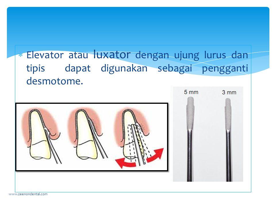  Elevator atau luxator dengan ujung lurus dan tipis dapat digunakan sebagai pengganti desmotome. www.zeenondental.com