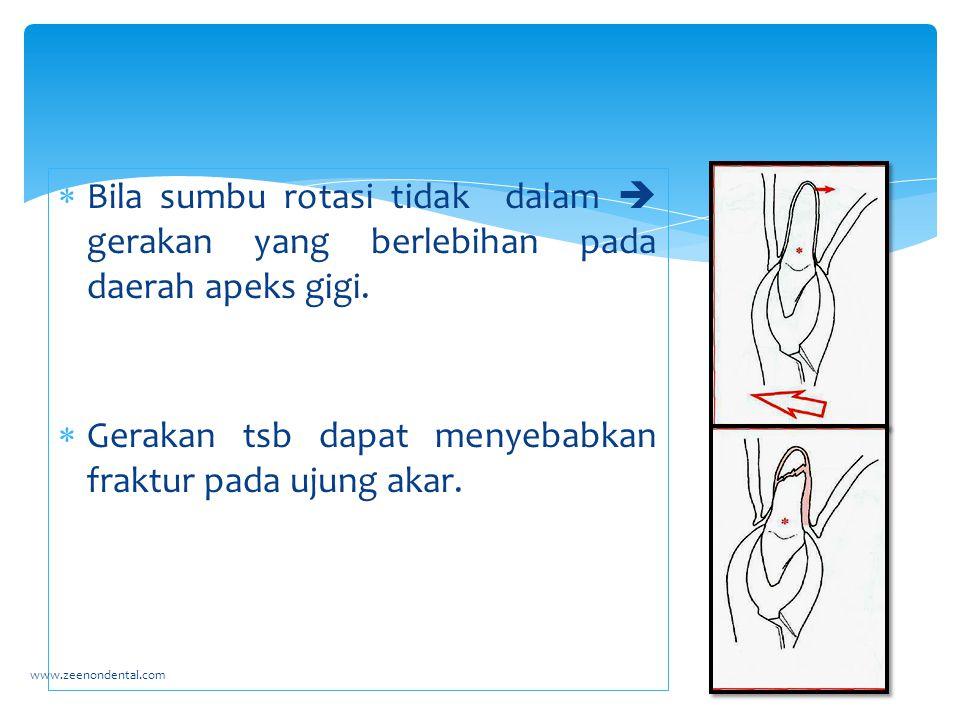  Bila sumbu rotasi tidak dalam  gerakan yang berlebihan pada daerah apeks gigi.  Gerakan tsb dapat menyebabkan fraktur pada ujung akar. www.zeenond