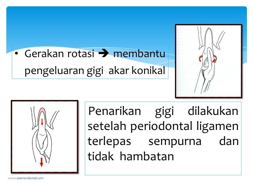Gerakan rotasi  membantu pengeluaran gigi akar konikal www.zeenondental.com Penarikan gigi dilakukan setelah periodontal ligamen terlepas sempurna dan tidak hambatan