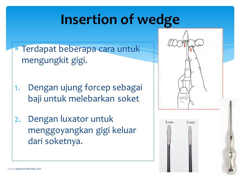 Terdapat beberapa cara untuk mengungkit gigi. 1.Dengan ujung forcep sebagai baji untuk melebarkan soket 2.Dengan luxator untuk menggoyangkan gigi ke