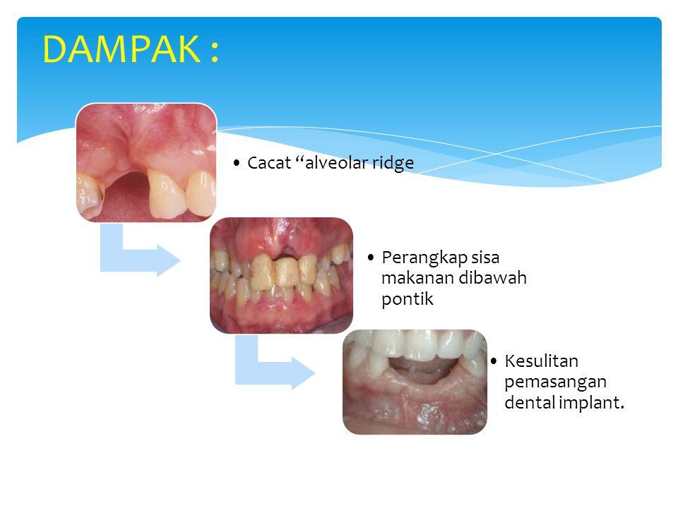 """Cacat """"alveolar ridge Perangkap sisa makanan dibawah pontik Kesulitan pemasangan dental implant. DAMPAK :"""