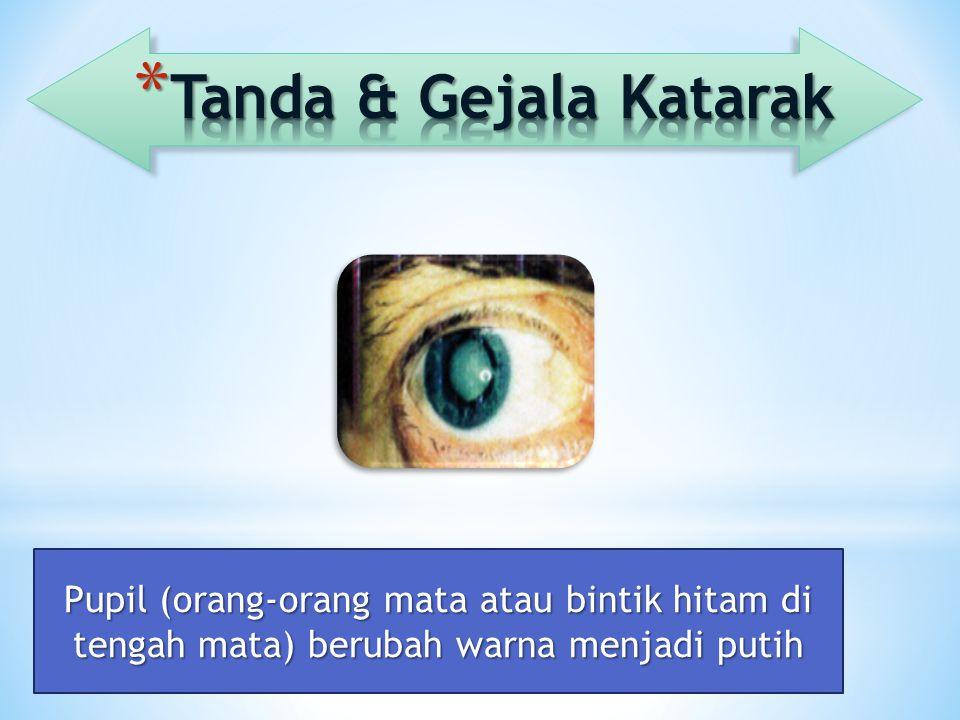 Pupil (orang-orang mata atau bintik hitam di tengah mata) berubah warna menjadi putih