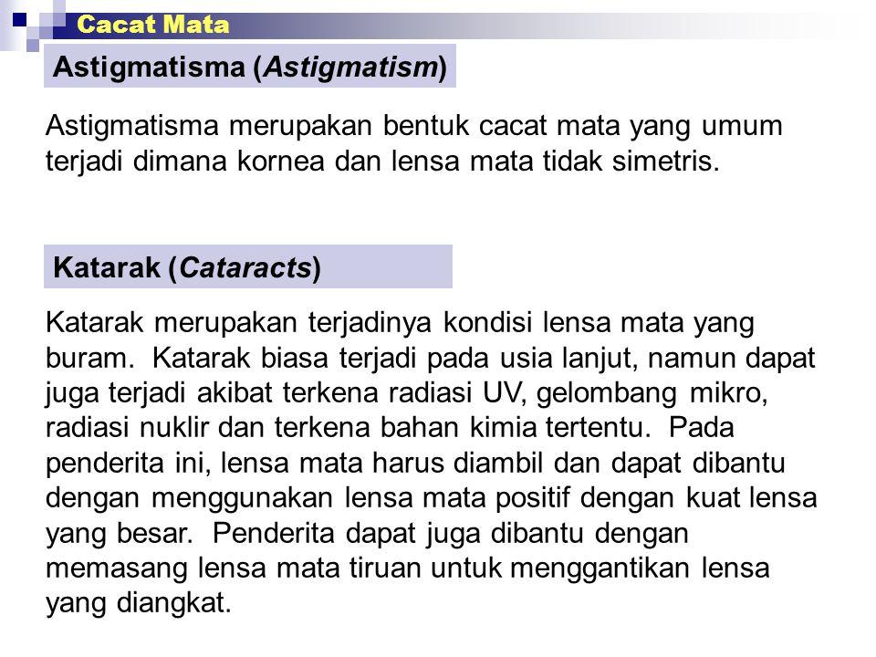 Cacat Mata Astigmatisma (Astigmatism) Astigmatisma merupakan bentuk cacat mata yang umum terjadi dimana kornea dan lensa mata tidak simetris. Katarak