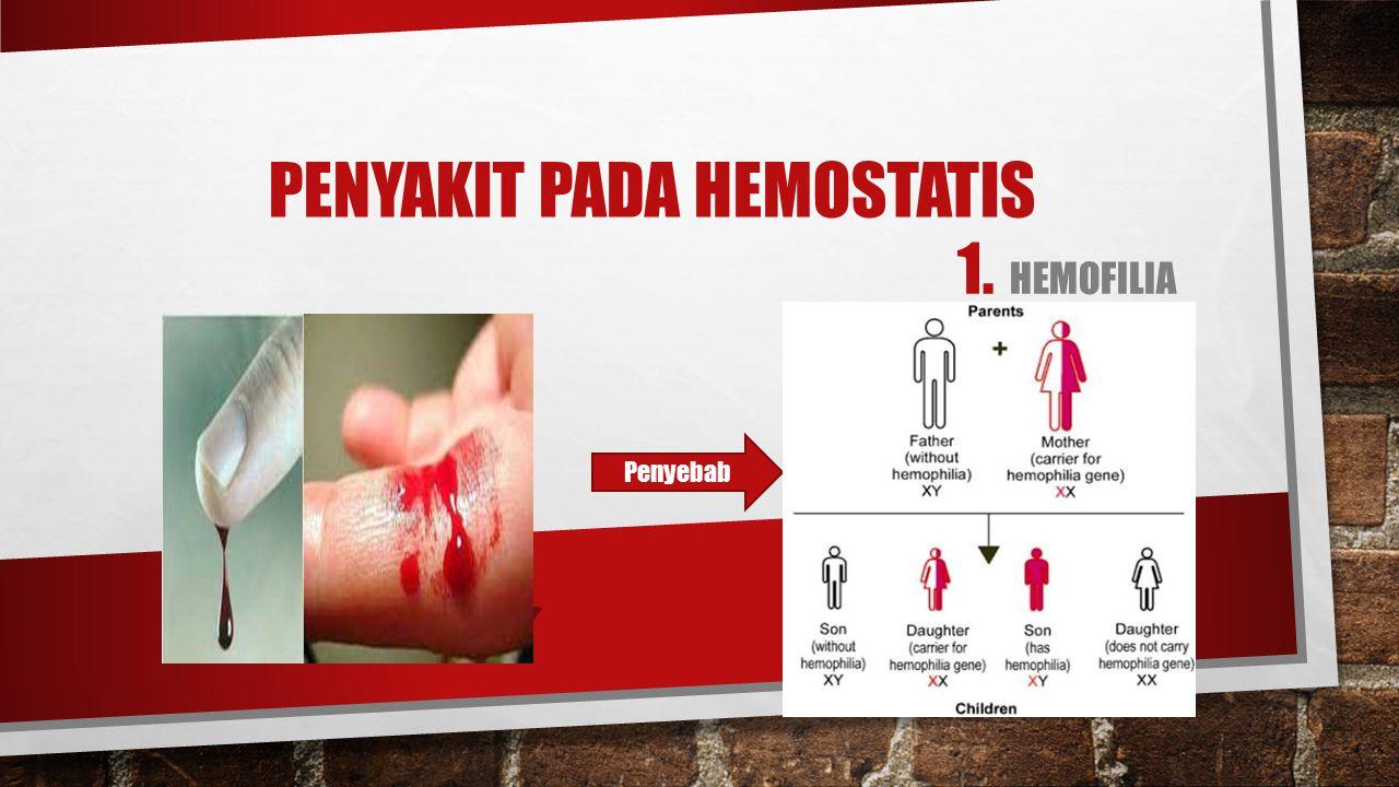 PENYAKIT PADA HEMOSTATIS 1. HEMOFILIA Penyebab