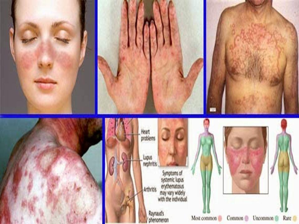GEJALA Kekakuan pada dan sekitar sendi yg berlangsung sekitar 30-60 menit pada pagi hari Bengkak pada 3 atau lebih sendir dalam waktu bersamaan Bengkak dan nyeri pada umumnya terjadi pada sendi-sendi tangan Bengkak dan nyeri pada umumnya terjadi pola yg simetris (nyeri sendi yg sama dikedua sisi tubuh)