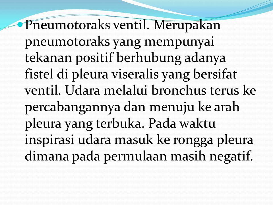 Pneumotoraks ventil. Merupakan pneumotoraks yang mempunyai tekanan positif berhubung adanya fistel di pleura viseralis yang bersifat ventil. Udara mel