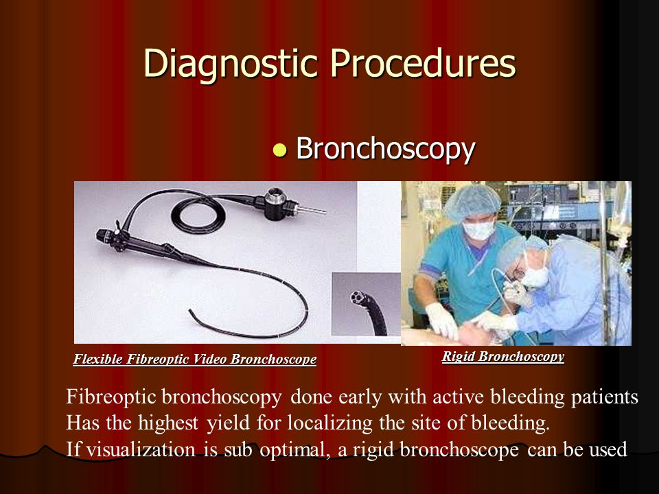 Diagnostic Procedures Bronchoscopy Bronchoscopy Flexible Fibreoptic Video Bronchoscope Rigid Bronchoscopy Fibreoptic bronchoscopy done early with active bleeding patients Has the highest yield for localizing the site of bleeding.