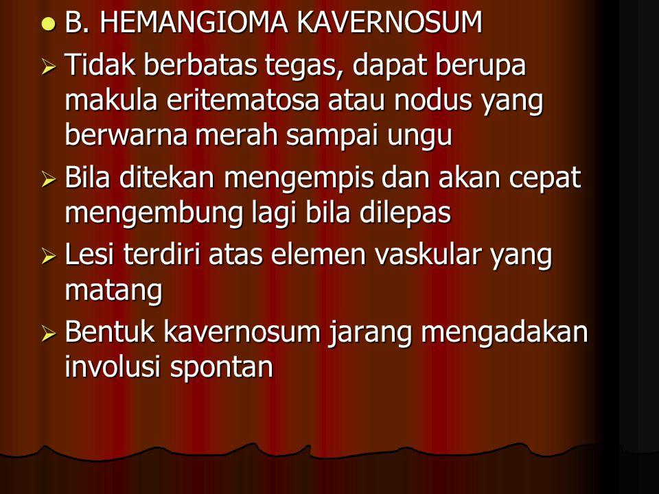 B. HEMANGIOMA KAVERNOSUM B. HEMANGIOMA KAVERNOSUM  Tidak berbatas tegas, dapat berupa makula eritematosa atau nodus yang berwarna merah sampai ungu 