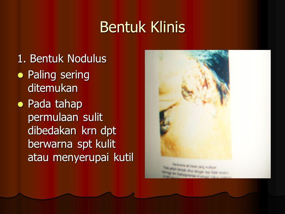 Bentuk Klinis 1. Bentuk Nodulus Paling sering ditemukan Paling sering ditemukan Pada tahap permulaan sulit dibedakan krn dpt berwarna spt kulit atau m