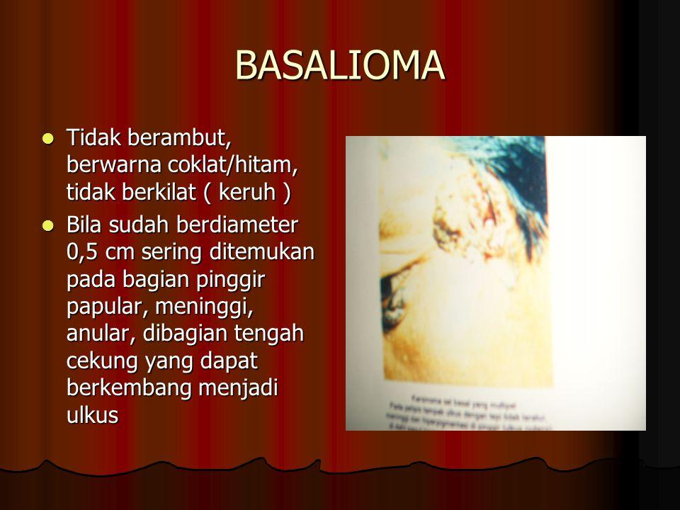 KLASIFIKASI : KLASIFIKASI : A.HEMANGIOMA KAPILER A.