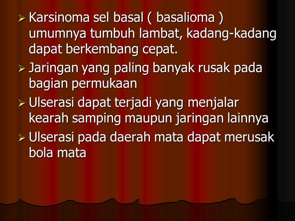  Karsinoma sel basal ( basalioma ) umumnya tumbuh lambat, kadang-kadang dapat berkembang cepat.  Jaringan yang paling banyak rusak pada bagian permu