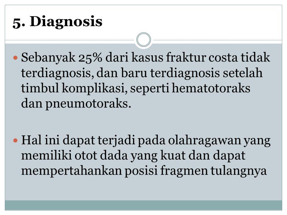 5. Diagnosis Sebanyak 25% dari kasus fraktur costa tidak terdiagnosis, dan baru terdiagnosis setelah timbul komplikasi, seperti hematotoraks dan pneum