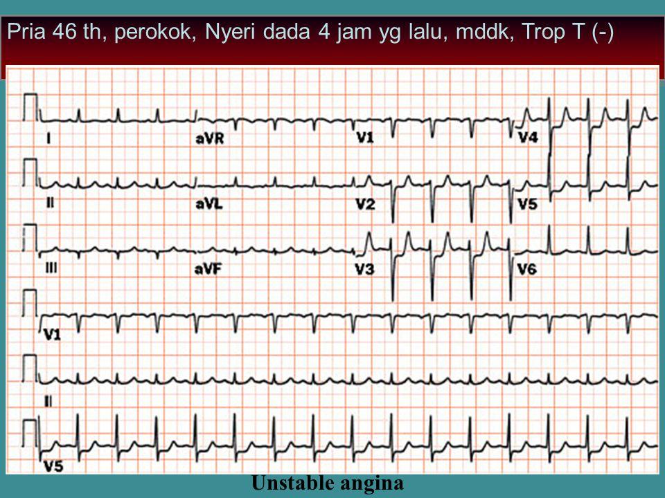 Unstable angina Pria 46 th, perokok, Nyeri dada 4 jam yg lalu, mddk, Trop T (-)
