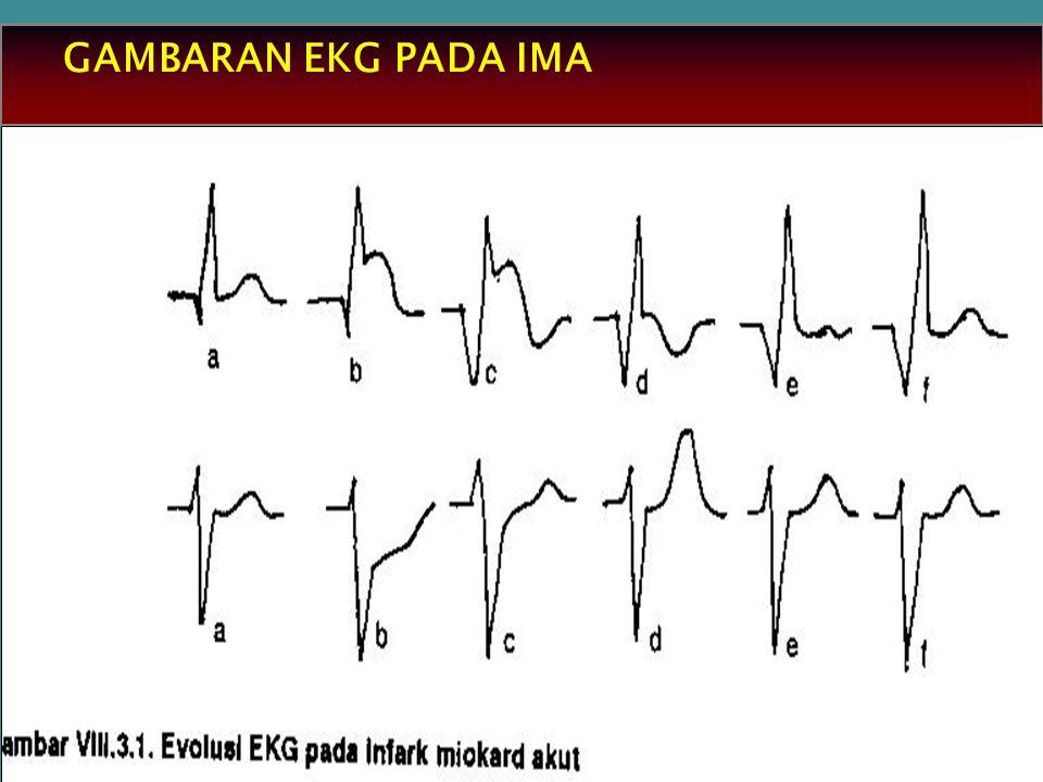 GAMBARAN EKG PADA IMA