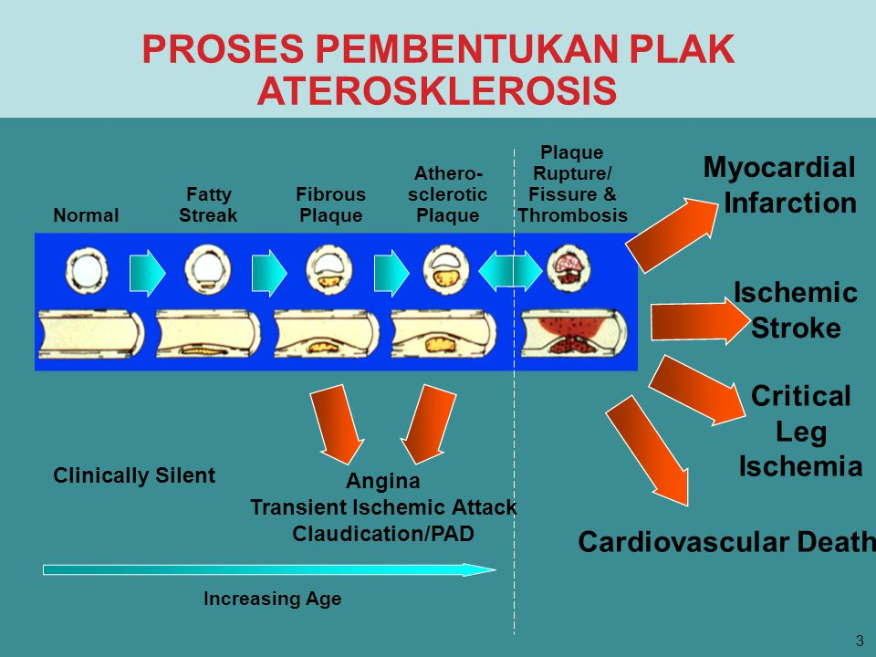 PROSES PEMBENTUKAN PLAK ATEROSKLEROSIS Normal Fatty Streak Fibrous Plaque Athero- sclerotic Plaque Plaque Rupture/ Fissure & Thrombosis Myocardial Infarction Ischemic Stroke Critical Leg Ischemia Clinically Silent Cardiovascular Death Increasing Age Angina Transient Ischemic Attack Claudication/PAD 3
