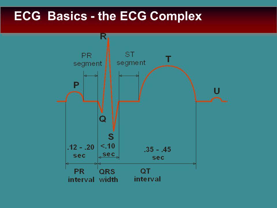 ECG Basics - the ECG Complex