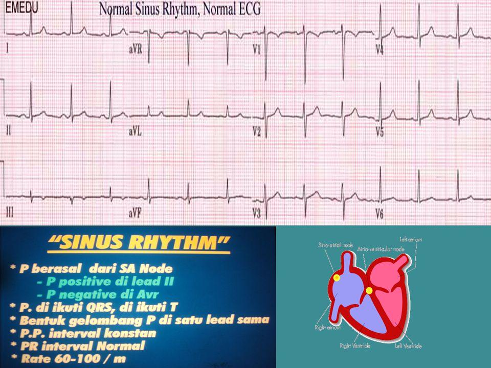 Tanda-tanda Serangan jantung akut Angina klasik :