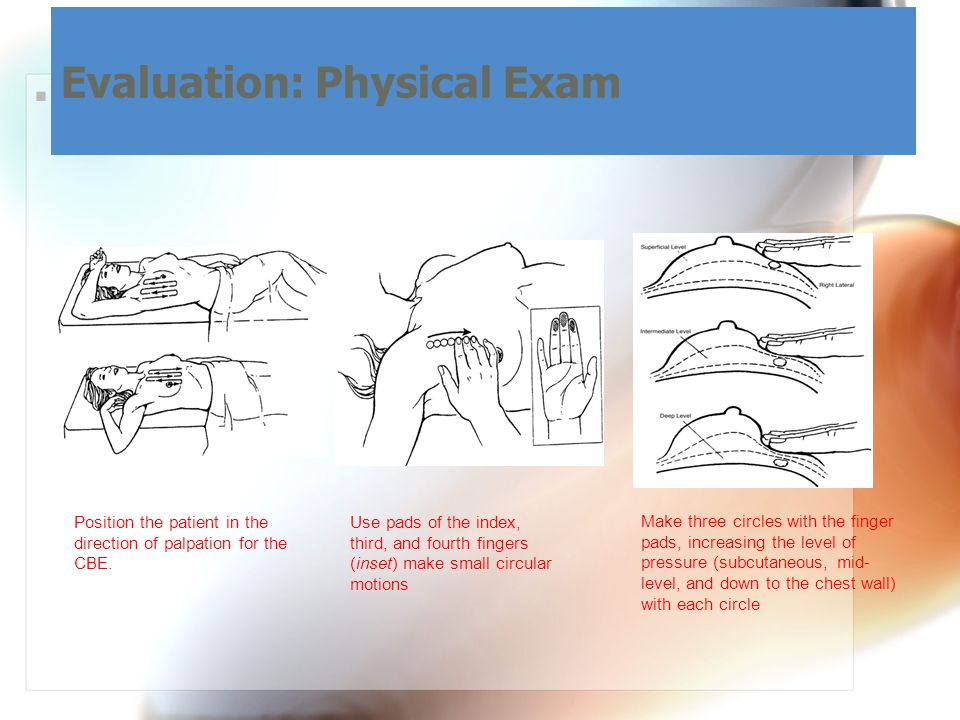  Clinical Breast Exam: Evaluation: Physical Exam Use pads of the index, third, and fourth fingers (inset) make small circular motions Make three circles with the finger pads, increasing the level of pressure (subcutaneous, mid- level, and down to the chest wall) with each circle Position the patient in the direction of palpation for the CBE.
