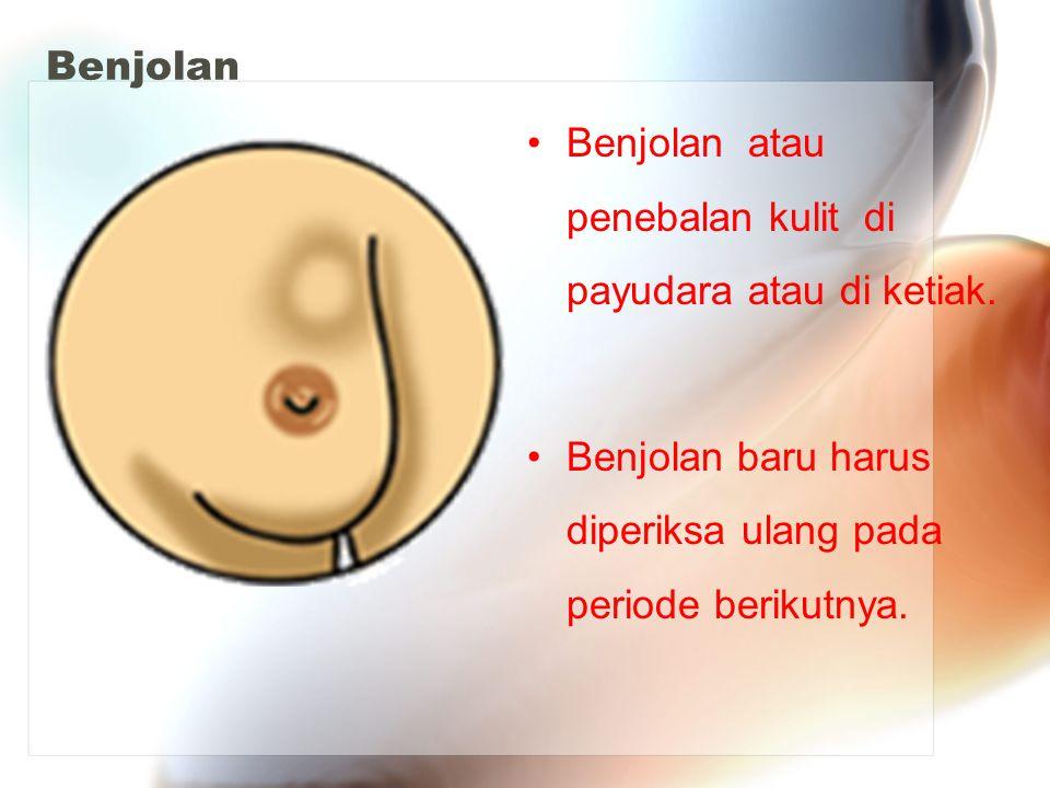 Benjolan Benjolan atau penebalan kulit di payudara atau di ketiak. Benjolan baru harus diperiksa ulang pada periode berikutnya.