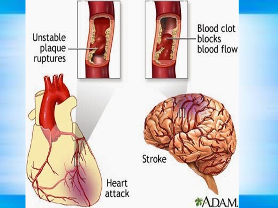 Faktor Risiko a.Hipertensi b.