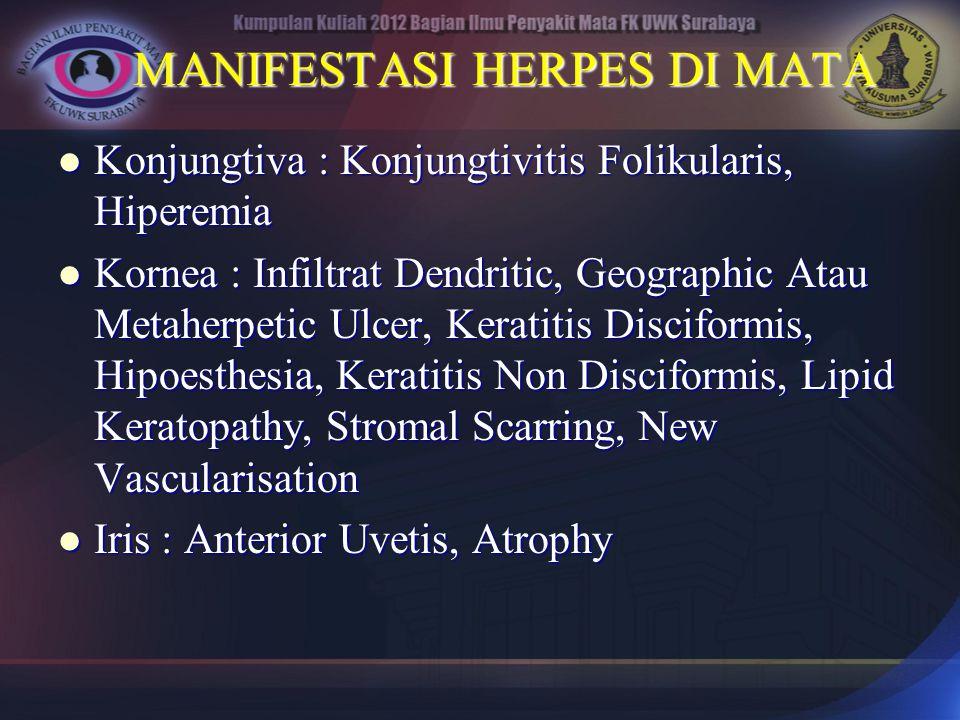 MANIFESTASI HERPES DI MATA Konjungtiva : Konjungtivitis Folikularis, Hiperemia Konjungtiva : Konjungtivitis Folikularis, Hiperemia Kornea : Infiltrat