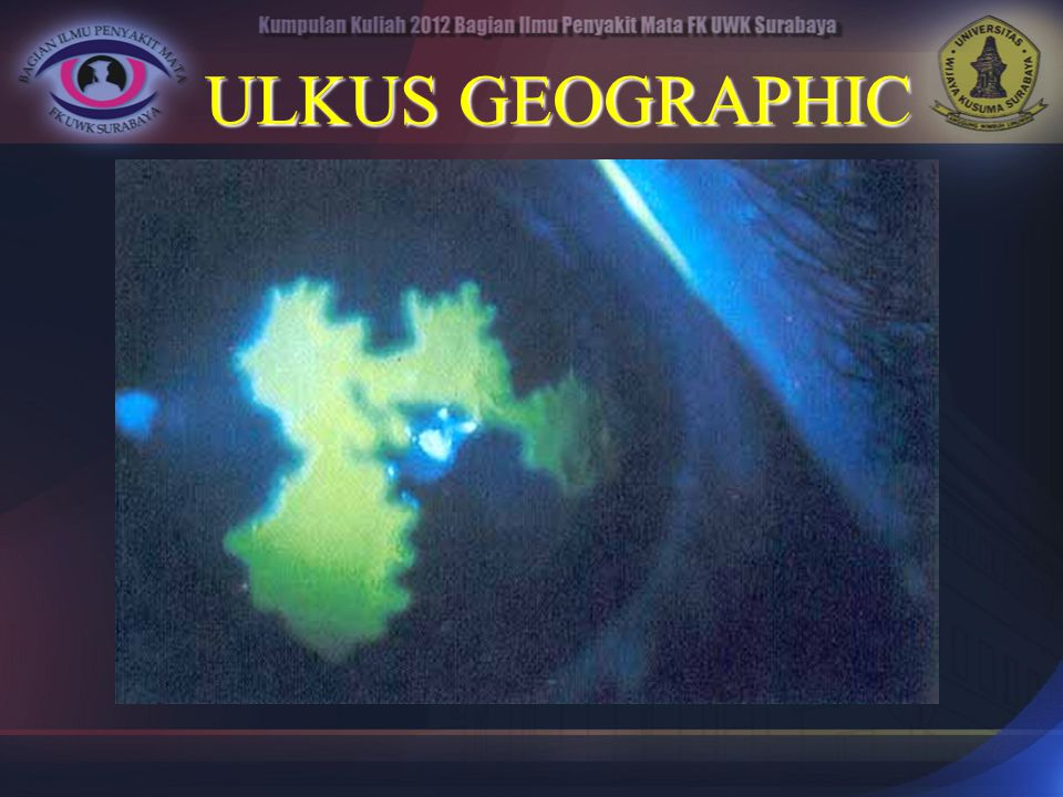 ULKUS GEOGRAPHIC