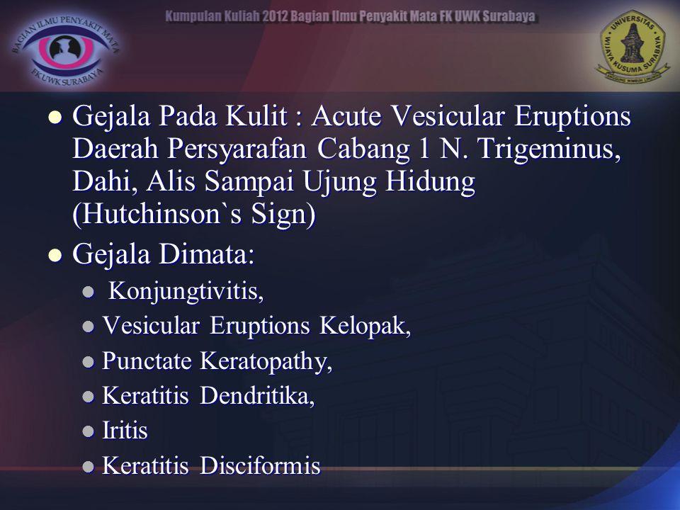 Gejala Pada Kulit : Acute Vesicular Eruptions Daerah Persyarafan Cabang 1 N. Trigeminus, Dahi, Alis Sampai Ujung Hidung (Hutchinson`s Sign) Gejala Pad