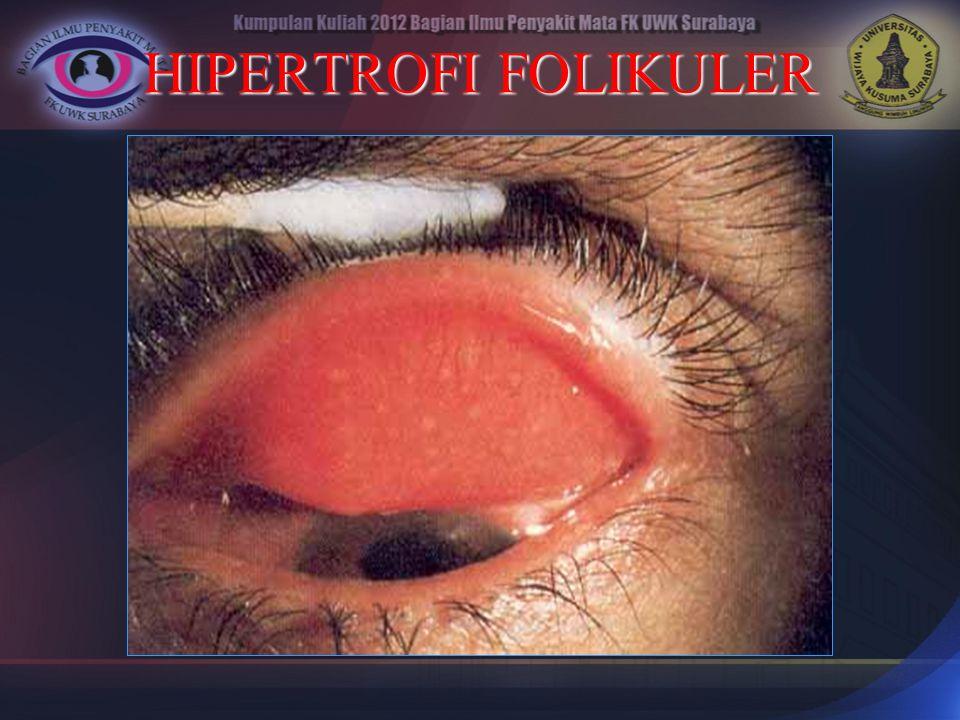 HIPERTROFI FOLIKULER