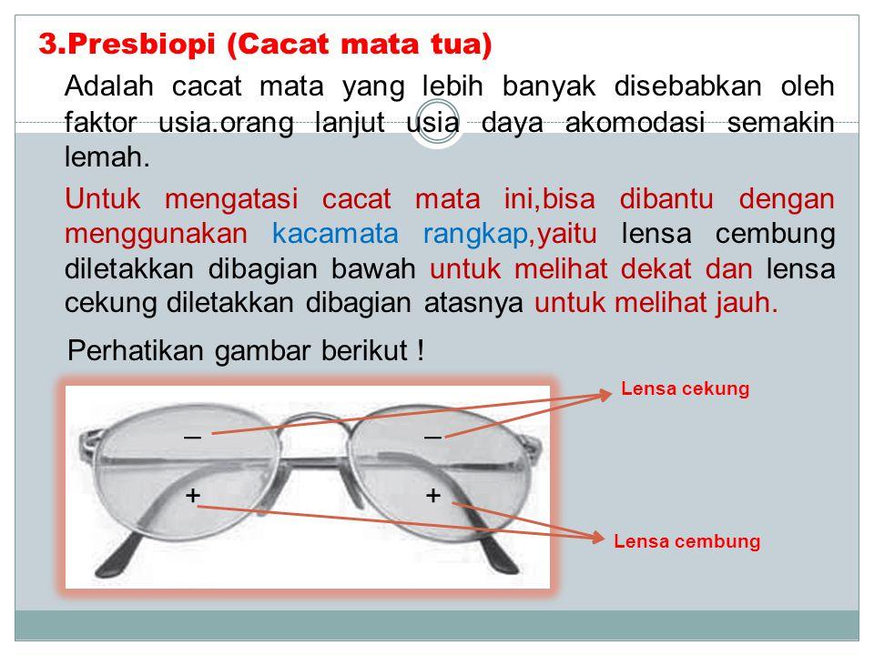 2.Miopi (Rabun jauh) Adalah cacat mata yang tidak bisa melihat benda jauh,sebab bayangan jatuh didepan retina mata. Untuk mengatasi cacat mata ini,bis