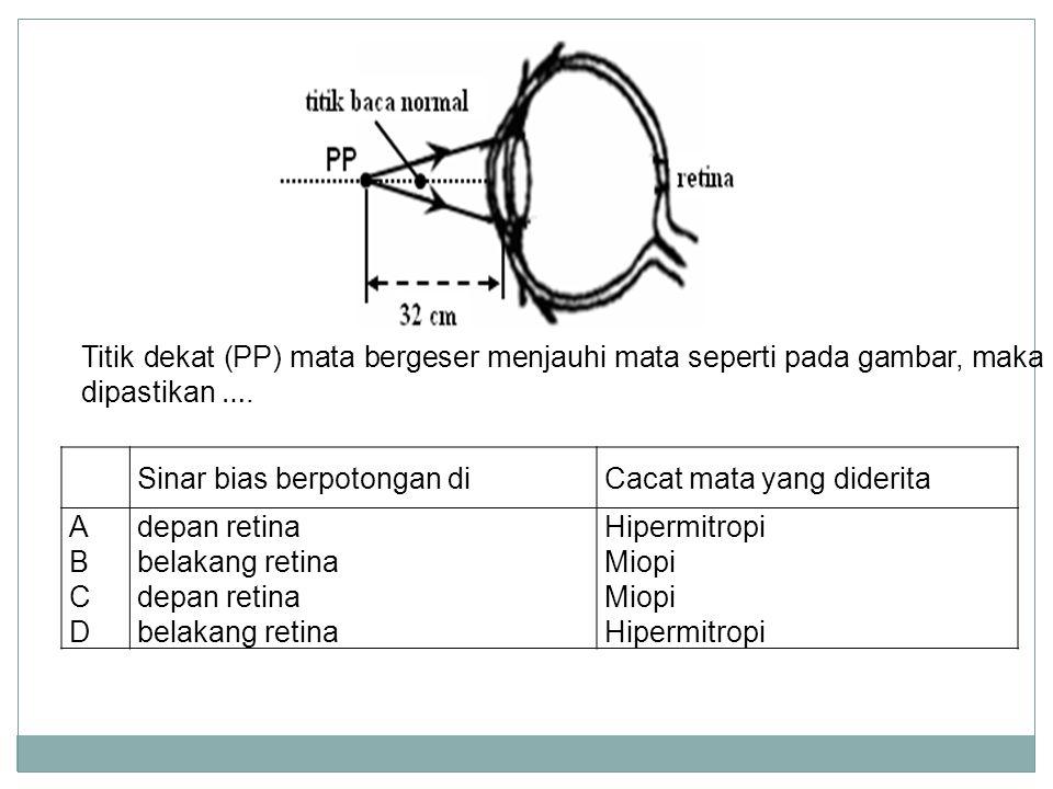 NormalRabun dekat (hypermetropi) Rabun Jauh Myopi) Mata tua (Presbiopi) bayanganDi retinaDi belakang retinaDi depan retina penglihatandapat membaca pa