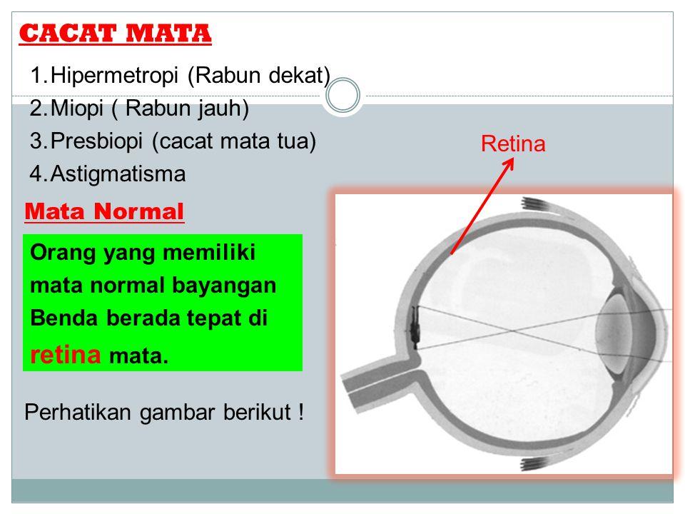 CACAT MATA 1.Hipermetropi (Rabun dekat) 2.Miopi ( Rabun jauh) 3.Presbiopi (cacat mata tua) 4.Astigmatisma Mata Normal Orang yang memiliki mata normal bayangan Benda berada tepat di retina mata.