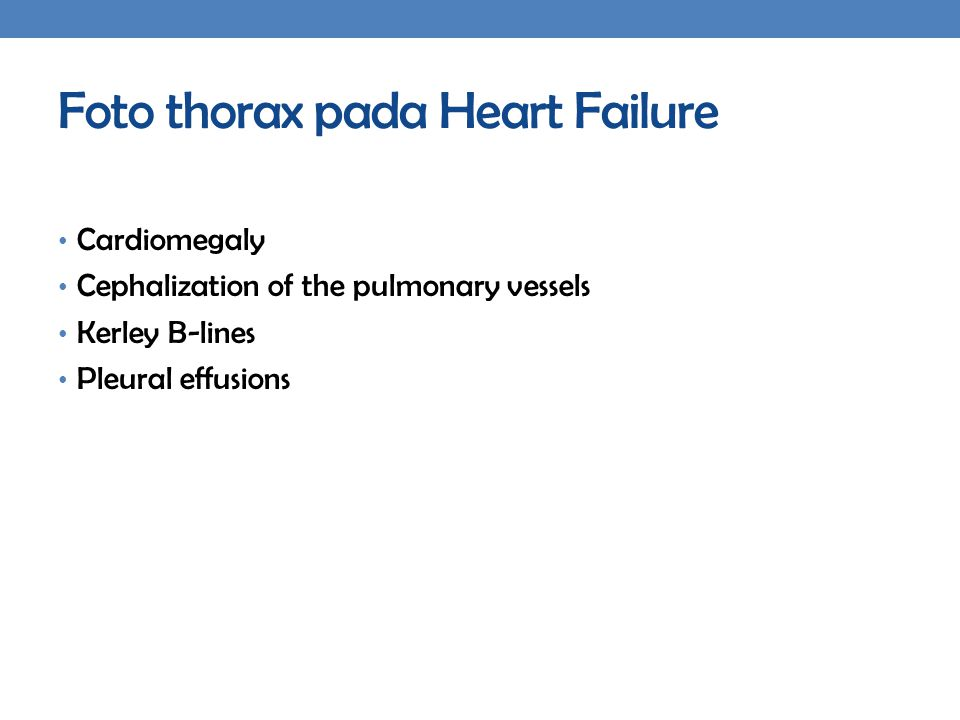 Foto thorax pada Heart Failure Cardiomegaly Cephalization of the pulmonary vessels Kerley B-lines Pleural effusions