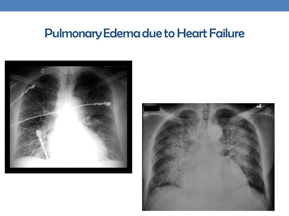 Pulmonary Edema due to Heart Failure