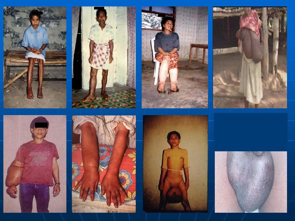 7/1/20154 Gejala klinis kronis : Gejala klinis kronis : Pembesaran menetap /elephantiasis pd tungkai, lengan, buah dada, buah zakar. Pembesaran meneta