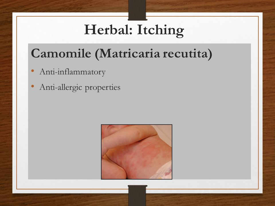 Herbal: Itching Camomile (Matricaria recutita) Anti-inflammatory Anti-allergic properties