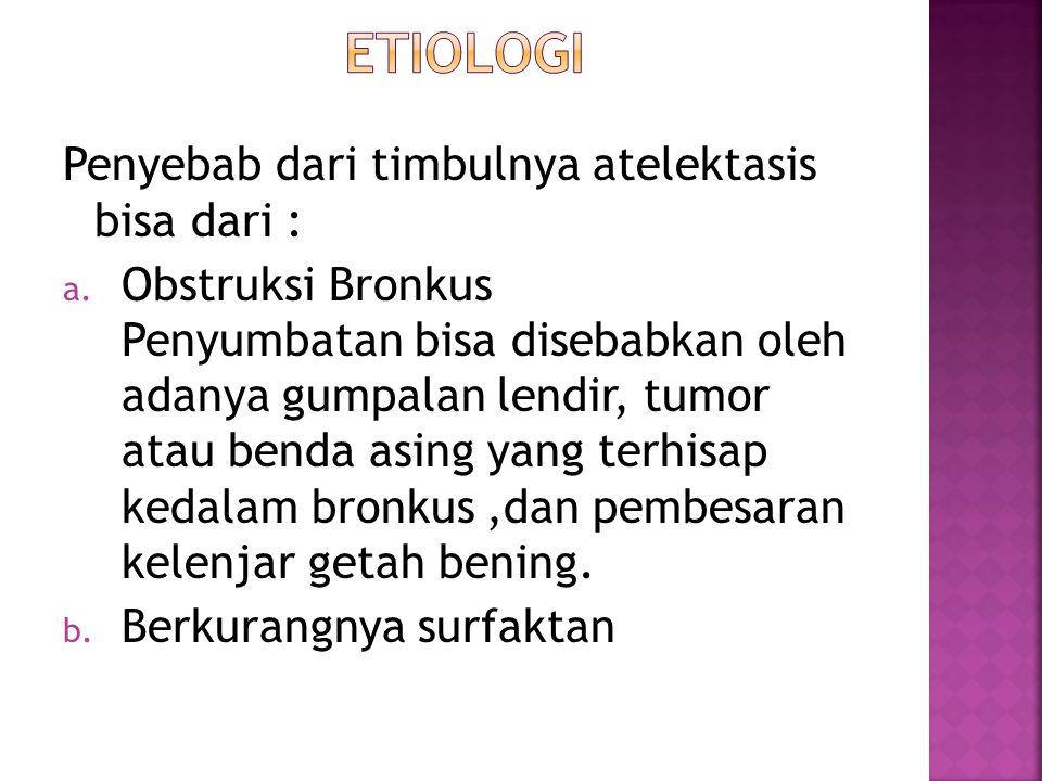 Penyebab dari timbulnya atelektasis bisa dari : a. Obstruksi Bronkus Penyumbatan bisa disebabkan oleh adanya gumpalan lendir, tumor atau benda asing y