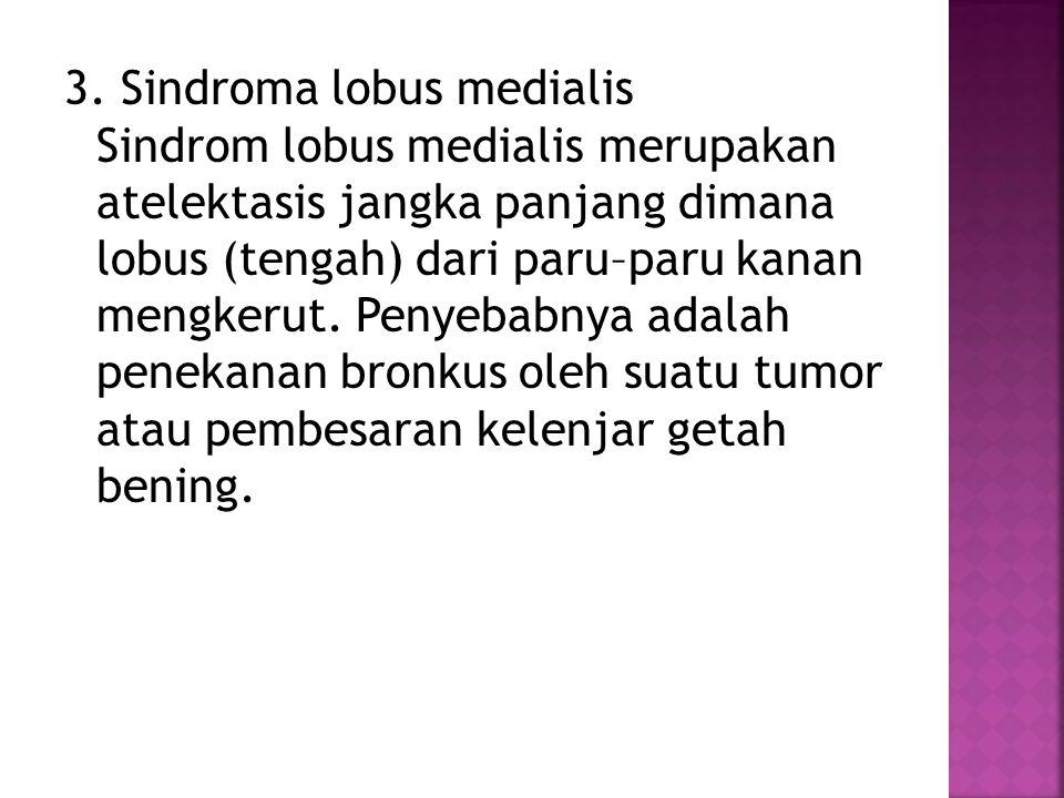 3. Sindroma lobus medialis Sindrom lobus medialis merupakan atelektasis jangka panjang dimana lobus (tengah) dari paru–paru kanan mengkerut. Penyebabn