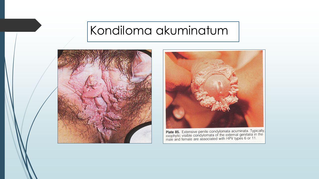 Kondiloma akuminatum